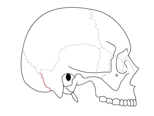 Occipitomastoid_suture